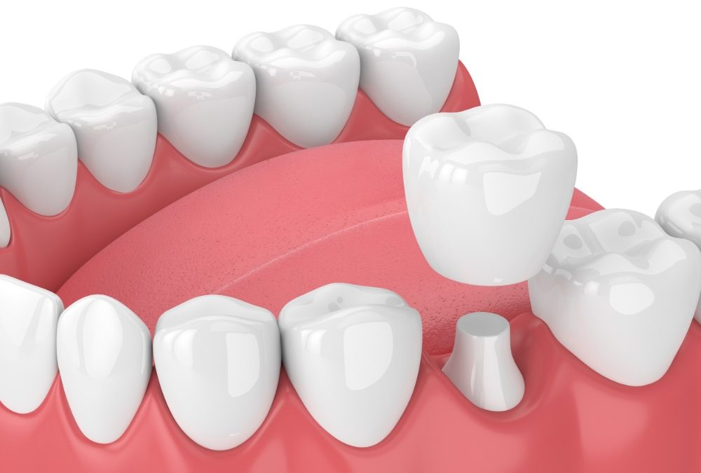 Dental Crown (Jaket Gigi)